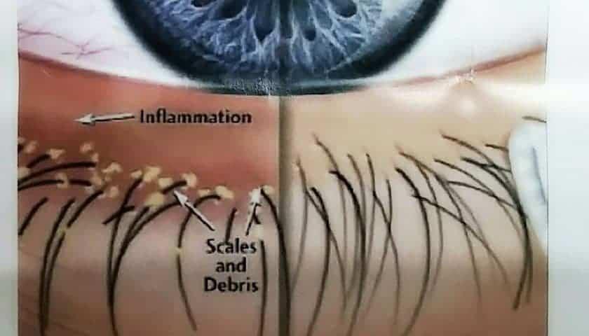 โรคตาแห้ง นวดตาอย่างไร