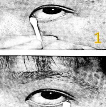 การนวดตาล่าง