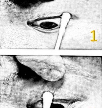 การนวดตาบน