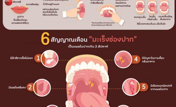 6 สัญญาณเตือน มะเร็่งช่องปาก